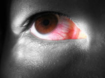 Redeye. Red veins on eye. Selective colouring with eye ball in colour and the rest of the face in monochrome stock images