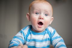 Boy with atopic dermatitis Royalty Free Stock Image