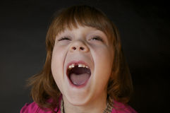 Redheaded Girl Missing Front Tooth Stock Photos