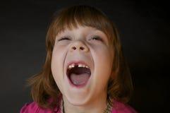 Redheaded Meisje dat VoorTand mist Stock Foto's