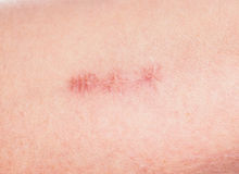 Redness around healing stitches on skin Royalty Free Stock Photos