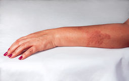 Redness from burn on woman hand Stock Photography