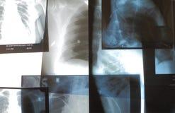 Reeks röntgenfoto's op de meningsdoos van de Röntgenstraal Royalty-vrije Stock Fotografie
