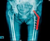Reemplazo de la cadera de la radiografía fotos de archivo libres de regalías