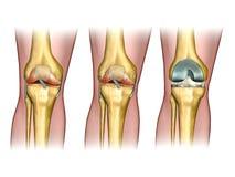 Reemplazo de la rodilla Imagen de archivo libre de regalías