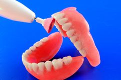 Refinement of dental prostheses Stock Images