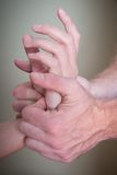 Reflexology женские терпеливые рука и запястье руки Стоковые Изображения RF