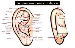 Reflexstreken op het oor Acupunctuurpunten op het oor Kaart van a Royalty-vrije Stock Foto's