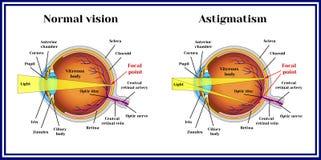 Refractive errors eyeball. Astigmatism. Medicine. vector illustration
