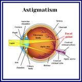 Refractive errors eyeball. Astigmatism. Medicine. royalty free illustration