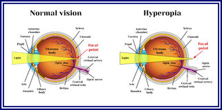 Refractive errors eyeball. Hyperopia. Medicine vector illustration