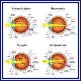 Refractive errors eyeball: hyperopia, myopia, astigmatism. Royalty Free Stock Photography