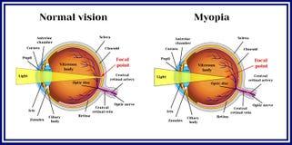 Refractive errors eyeball. Myopia. Medicine. Refractive errors eyeball. Myopia. Medicine royalty free illustration