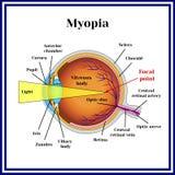 Refractive errors eyeball. Myopia. Medicine royalty free illustration
