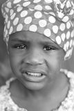 Refugee. A young child shows pain through her facial expression Royalty Free Stock Photos