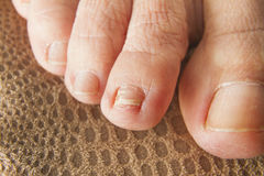 Regrown Foot Nail. Middle toe finger with re-grown nail after trauma royalty free stock photography