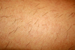 Free Regrown Hair On The Skin After Shaving. Depilation. Stock Photography - 85915782