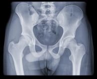 Regular hip and pelvis of young man Royalty Free Stock Image