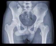 Regular hip and pelvis of young man. Regular hip and pelvis of a young man, isolated on black background Royalty Free Stock Image