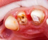 Rehabilitación de los dientes Imagen de archivo