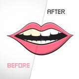 Reinigungs-Zähne, vorher und nachher lizenzfreie abbildung