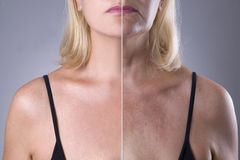 Rejuvenation woman`s skin, before after anti aging concept, wrinkle treatment, facelift and plastic surgery. Half of body on gray background stock photography