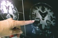 REKLAMA z CVD białej sprawy zmianą zdjęcia stock