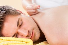 Relaxed man receiving acupuncture treatment in spa Royalty Free Stock Photography