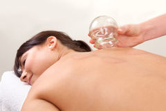 Relaxed Woman after Fire Cupping Stock Images