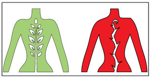 Relevo da corda e ilustração espinais da dor ilustração stock