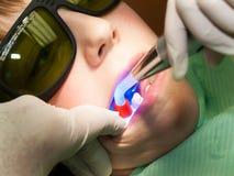 Relleno dental para el muchacho joven imagen de archivo libre de regalías