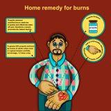 Remédio home para queimaduras Imagens de Stock