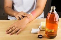 Remedio natural eficaz del vinagre de sidra de Apple para el picor de la piel, fung imágenes de archivo libres de regalías