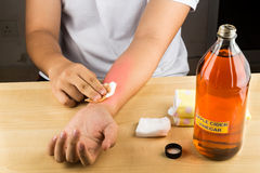 Remedio natural eficaz del vinagre de sidra de Apple para el picor de la piel, fung fotos de archivo