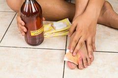 Remedio natural eficaz del vinagre de sidra de Apple para el picor de la piel, fung foto de archivo