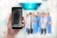 Remettez tenir un téléphone avec l'image et le docteur de radiographie de la poitrine menant a Photographie stock libre de droits