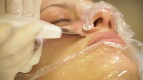 Remoção ascendente próxima do laser do procedimento de pontos pretos da pele de uma jovem mulher em uma clínica cosmética filme