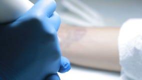 Remoção da tatuagem do laser com mão vídeos de arquivo