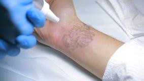 Remoção da tatuagem do laser com mão video estoque
