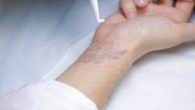 Remoção da tatuagem do laser com mão filme