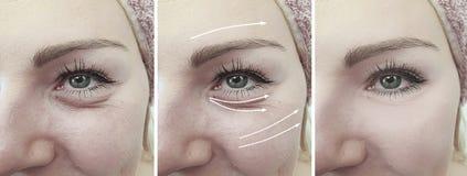 Remoção do olho do efeito da diferença da seta do vinco da cara da mulher antes e depois do tratamento fotos de stock royalty free