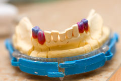 Remodeling of teeth of wax Royalty Free Stock Image