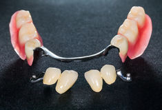 Removable dental prosthesis Stock Image