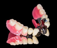 Removable dental prosthesis Royalty Free Stock Photos