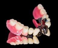 Removable dental prosthesis Royalty Free Stock Photos