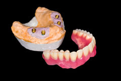 Removable denture Stock Images