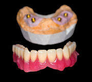 Removable denture stock photography
