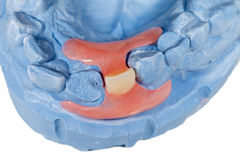 Removable incisor prosthesis Stock Images