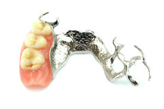 Removable partial denture. Close up of replacement teeth on white background Royalty Free Stock Photo