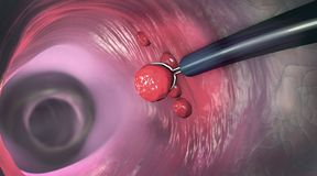 Removal of a colonic polyp with a electrical wire loop during a colonoscopy